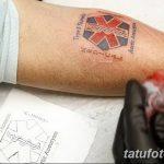 фото Медицинские тату от 22.04.2018 №094 - Medical Tattoo - tatufoto.com