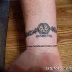 фото Медицинские тату от 22.04.2018 №097 - Medical Tattoo - tatufoto.com