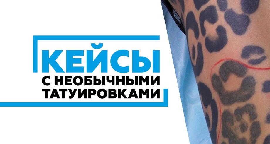 Удаление необычных тату лазером - случаи оригинальных татуировок - картинка