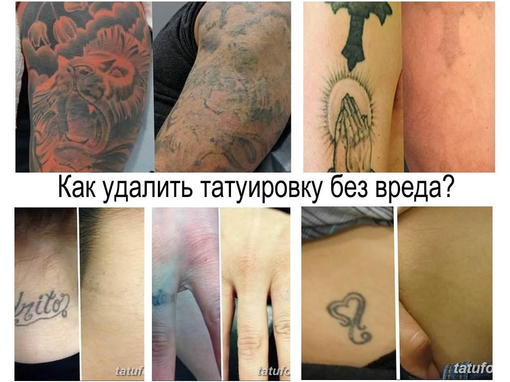 Как удалить татуировку без вреда - информация о способах и фото примеры