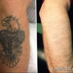 Фото удаление татуировки 21.11.2018 №004 - photo tattoo removal - tatufoto.com