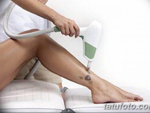 Фото удаление татуировки 21.11.2018 №119 - photo tattoo removal - tatufoto.com