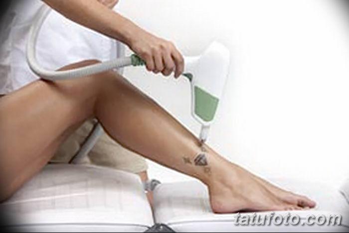 Как удалить татуировку без вреда?