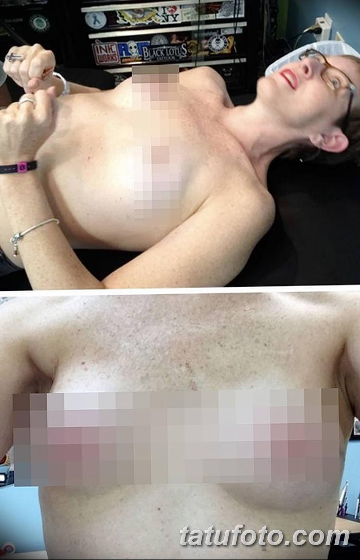 Бесплатные татуировки вместо груди - тату для больных раком молочной железы - фото 5