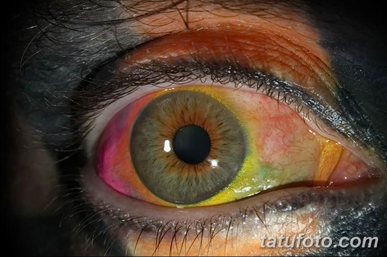 Разноцветные глазные яблоки – опыт (история) Мэтта Гоне - фото 1