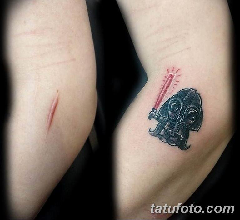 фото тату на шраме 29.04.2019 №009 - scar tattoo - tatufoto.com