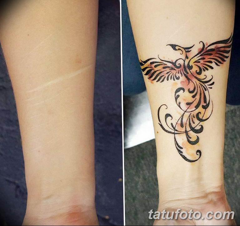 фото тату на шраме 29.04.2019 №011 - scar tattoo - tatufoto.com