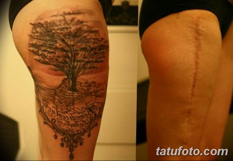 фото тату на шраме 29.04.2019 №014 - scar tattoo - tatufoto.com