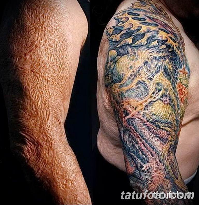 фото тату на шраме 29.04.2019 №015 - scar tattoo - tatufoto.com