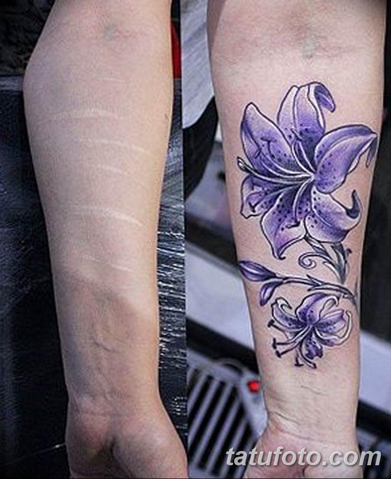 фото тату на шраме 29.04.2019 №024 - scar tattoo - tatufoto.com