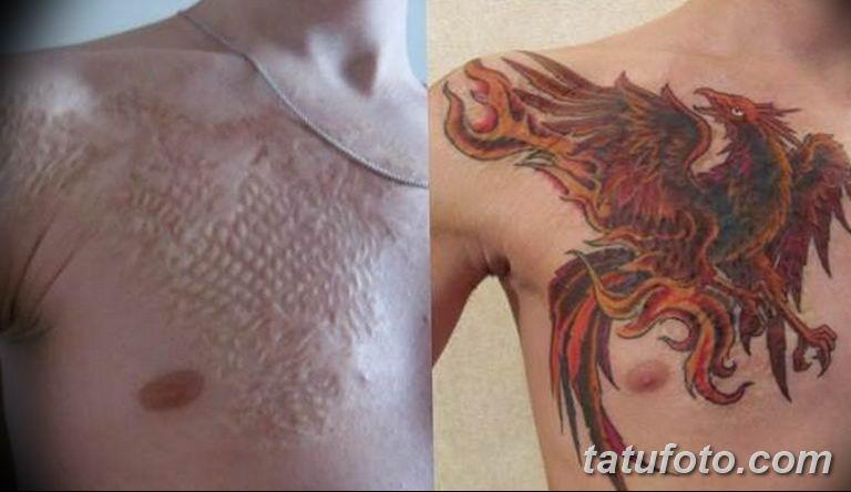 фото тату на шраме 29.04.2019 №025 - scar tattoo - tatufoto.com