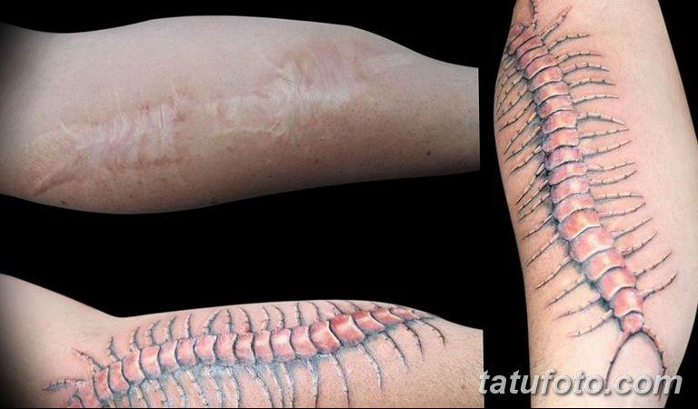 фото тату на шраме 29.04.2019 №030 - scar tattoo - tatufoto.com