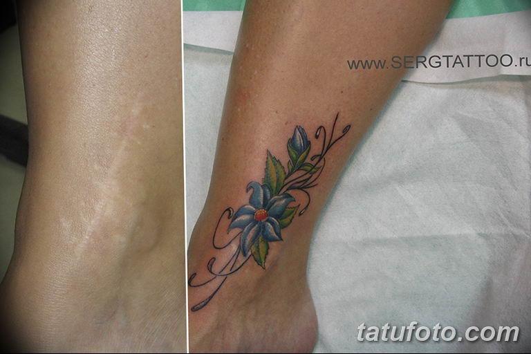 фото тату на шраме 29.04.2019 №032 - scar tattoo - tatufoto.com