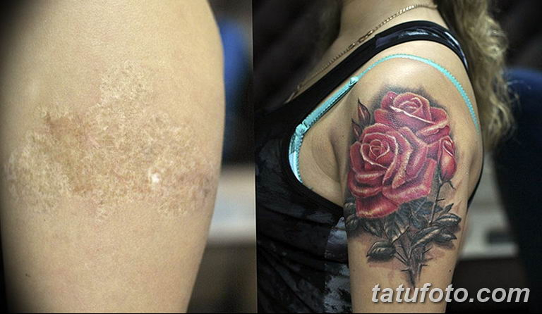 фото тату на шраме 29.04.2019 №053 - scar tattoo - tatufoto.com