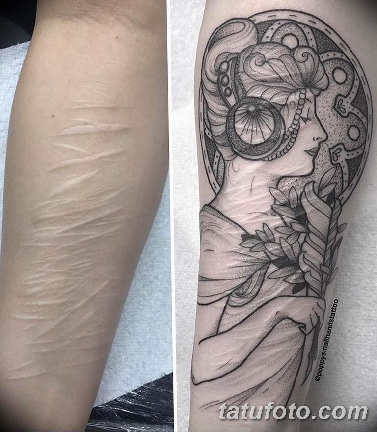 фото тату на шраме 29.04.2019 №054 - scar tattoo - tatufoto.com