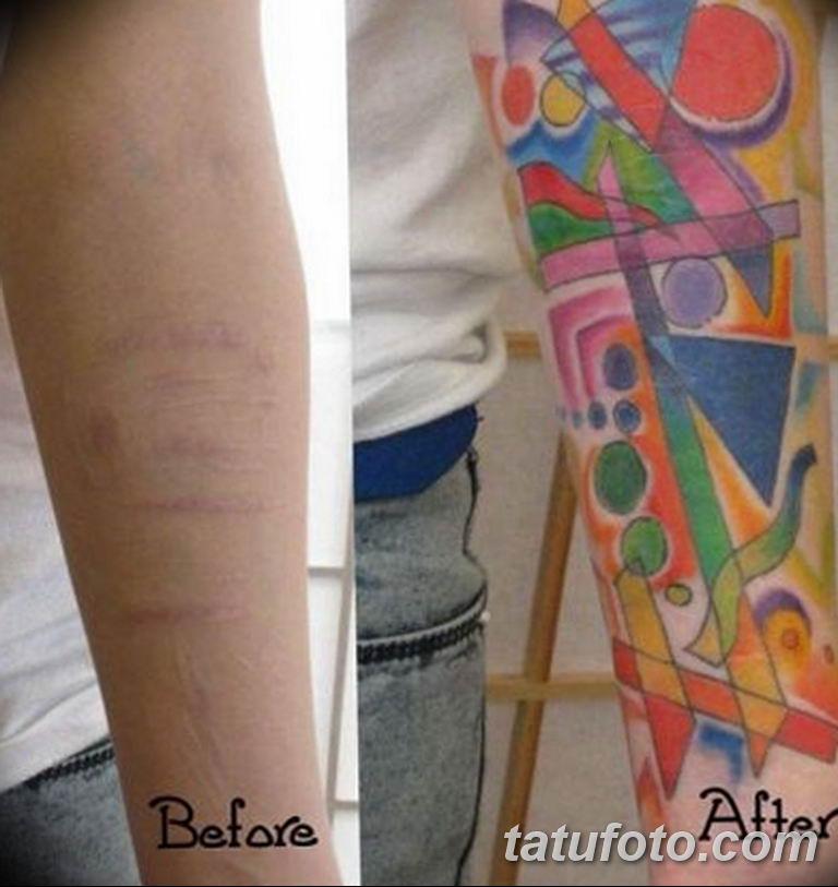 фото тату на шраме 29.04.2019 №060 - scar tattoo - tatufoto.com