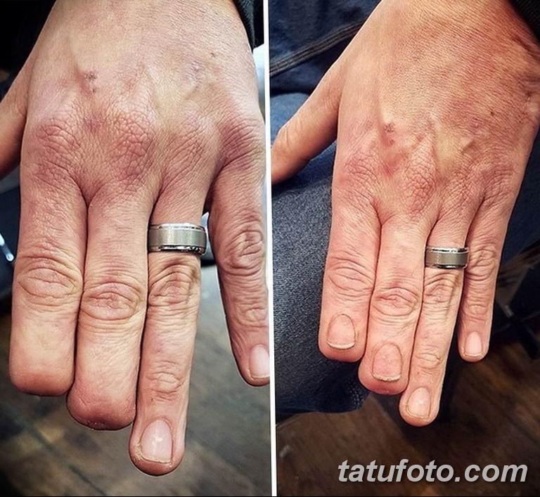 фото тату на шраме 29.04.2019 №064 - scar tattoo - tatufoto.com