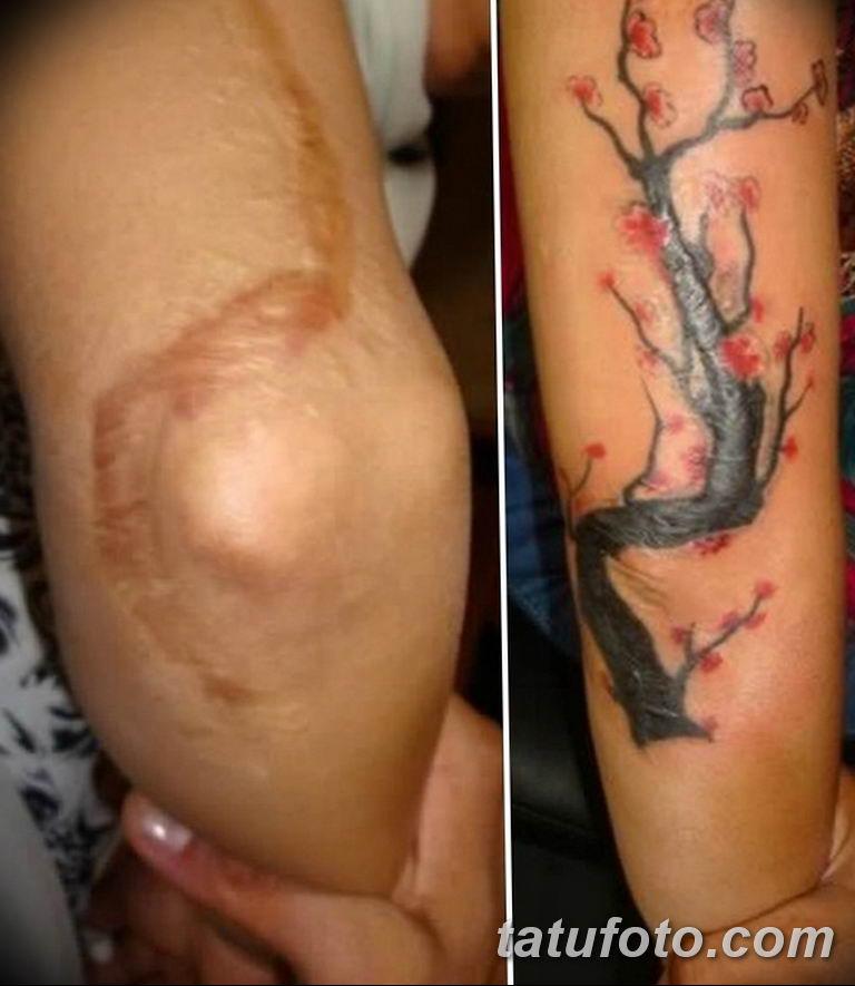 фото тату на шраме 29.04.2019 №067 - scar tattoo - tatufoto.com