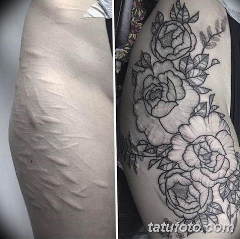 фото тату на шраме 29.04.2019 №068 - scar tattoo - tatufoto.com