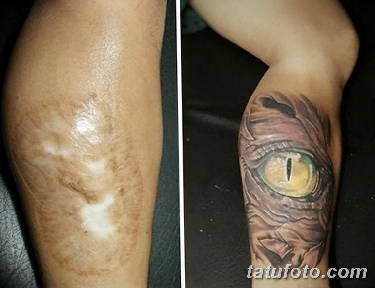 фото тату на шраме 29.04.2019 №075 - scar tattoo - tatufoto.com