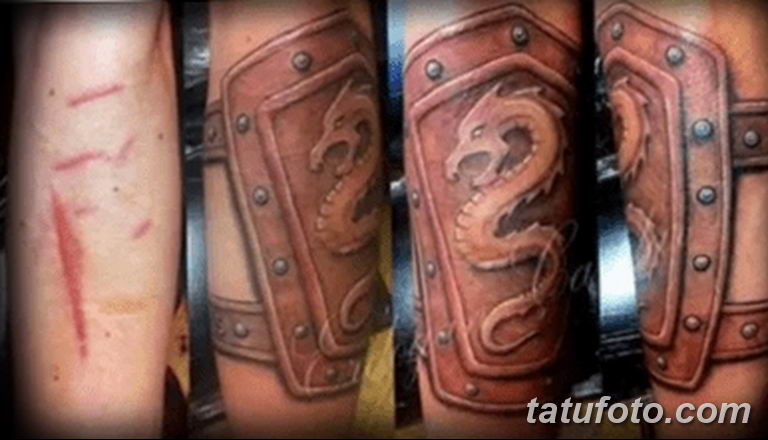 фото тату на шраме 29.04.2019 №089 - scar tattoo - tatufoto.com
