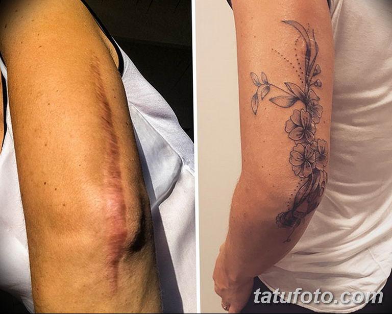 фото тату на шраме 29.04.2019 №094 - scar tattoo - tatufoto.com