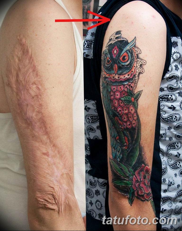 фото тату на шраме 29.04.2019 №107 - scar tattoo - tatufoto.com
