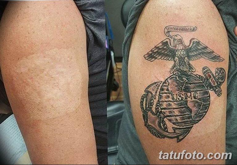 фото тату на шраме 29.04.2019 №114 - scar tattoo - tatufoto.com