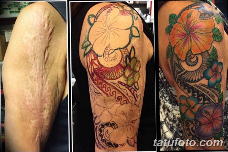 фото тату на шраме 29.04.2019 №116 - scar tattoo - tatufoto.com