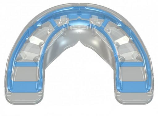 Система аппаратов Myobrace - фото