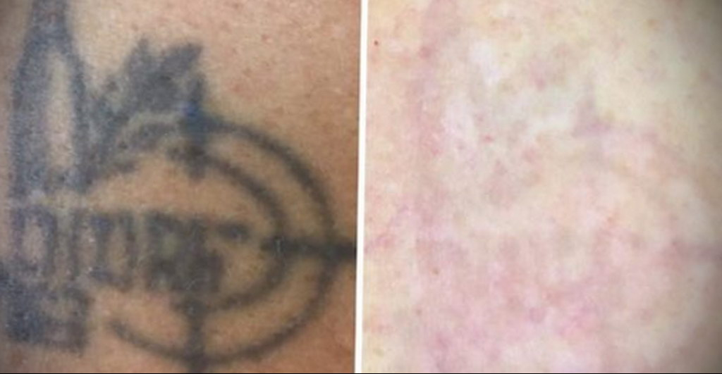 Как свести татуировку - фото 2
