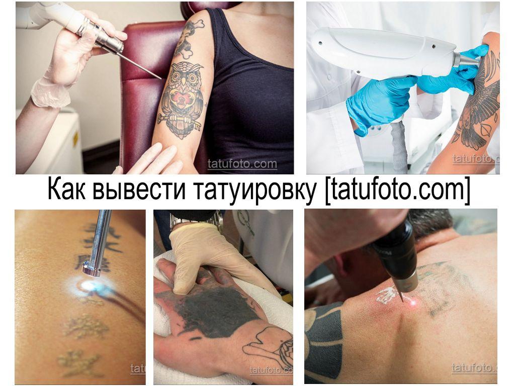 Как вывести татуировку - информация про способы удаления тату и фото примеры