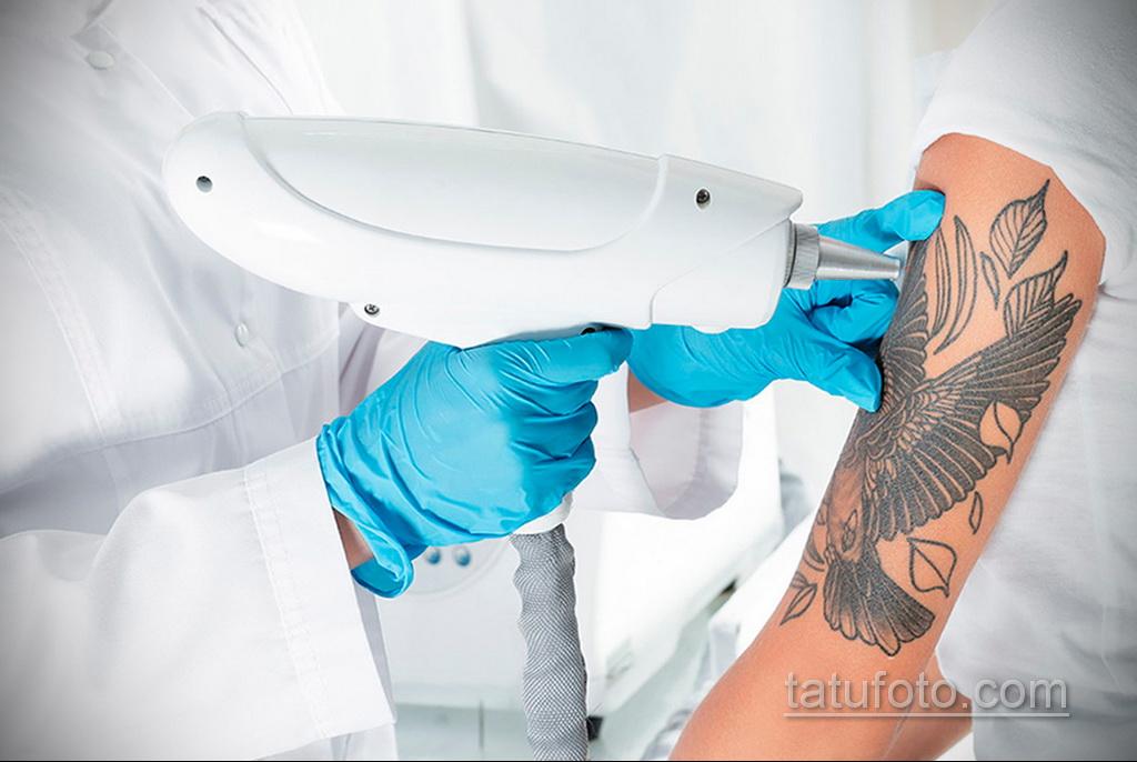 Фото пример выведения татуировки 31.05.2020 №1003 - tattoo- tatufoto.com