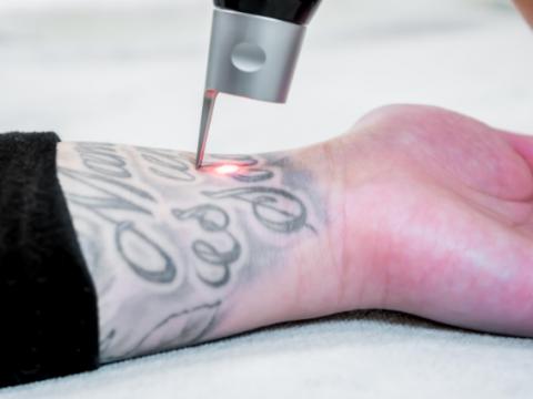 Можно ли удалить татуировку - фото - картинка 1