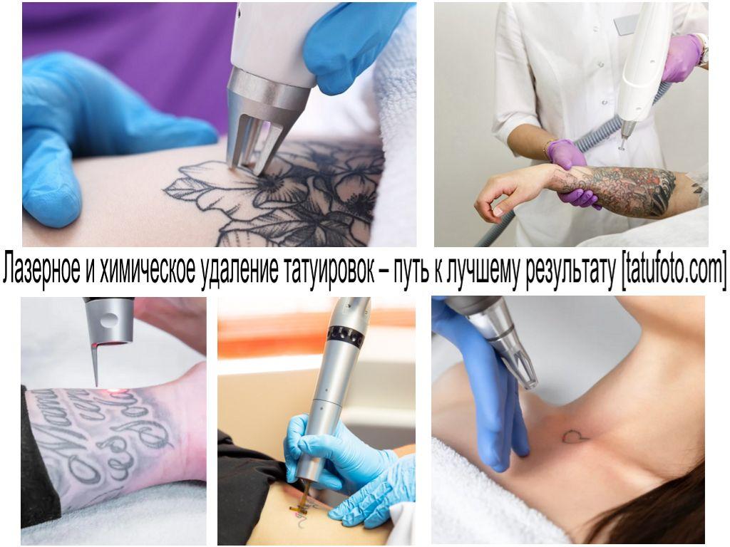 Лазерное и химическое удаление татуировок – путь к лучшему результату - информация и фото