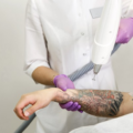 удаление тату лазером - laser tattoo removal - 25012021 - фото 1