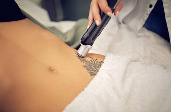 удаление тату лазером - laser tattoo removal - 25012021 - фото 2