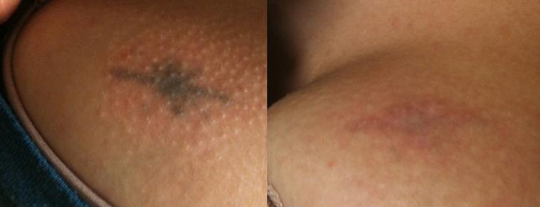 химическое удаление тату - chemical tattoo removal - 25012021 - фото 1