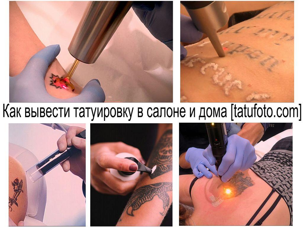 Как вывести татуировку в салоне и дома - информация - советы - фото процедуры