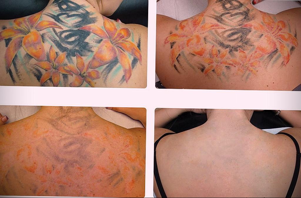 Как вывести татуировку в салоне и дома - tatufoto.com 10022021 фото - 1