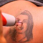 Как вывести татуировку в салоне и дома - tatufoto.com 10022021 фото - 14