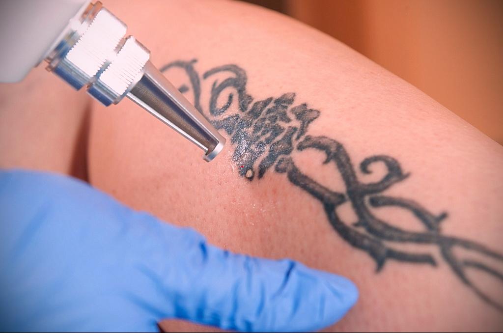 Как вывести татуировку в салоне и дома - tatufoto.com 10022021 фото - 3