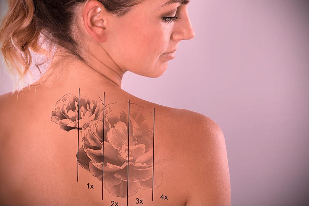Как вывести татуировку в салоне и дома - tatufoto.com 10022021 фото - 5