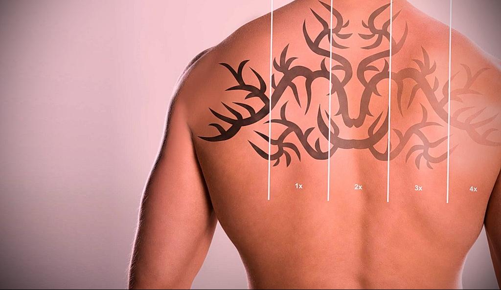 Как вывести татуировку в салоне и дома - tatufoto.com 10022021 фото - 7
