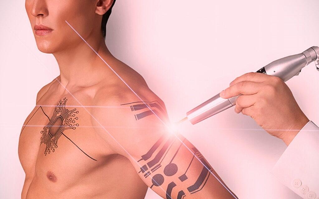 Как вывести татуировку в салоне и дома