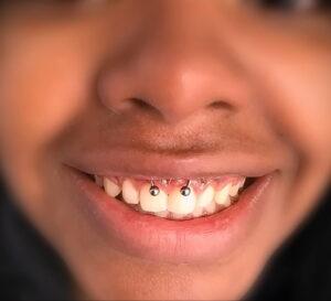 Фото крутого пирсинга у человека 17.03.2021 №005 - cool piercing - tatufoto.com